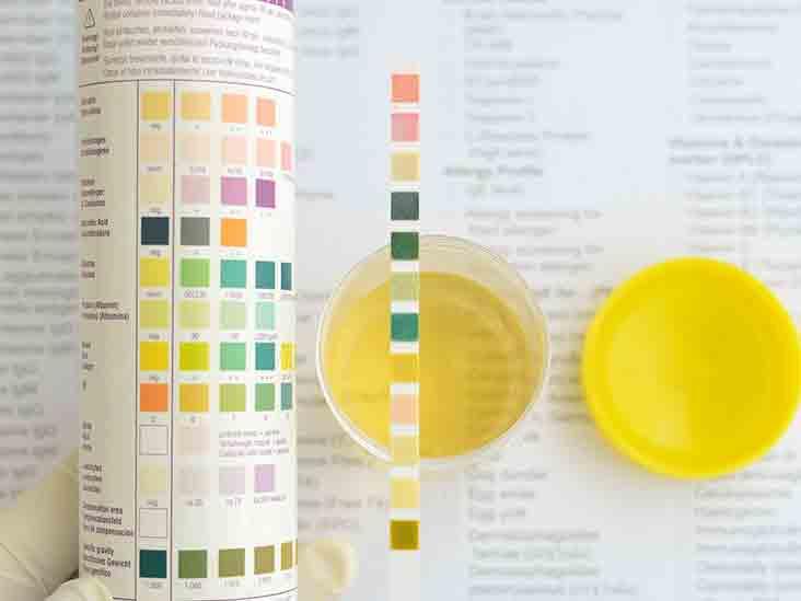 bagaimana seharusnya ph normal urine yang menjadi indikasi kondisi kesehatan manusia?