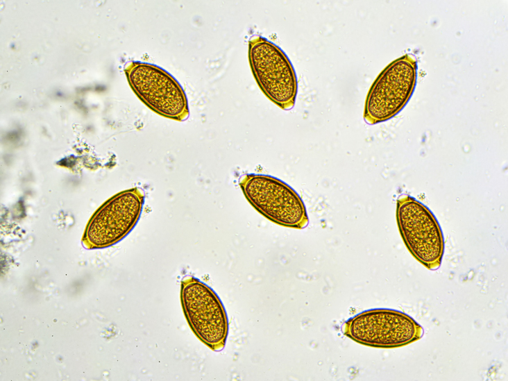 Whipworm Infection: Symptoms, Causes, Treatment, and Prevention