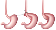 Fundoplication: Types, Procedure, Diet, Recovery, and