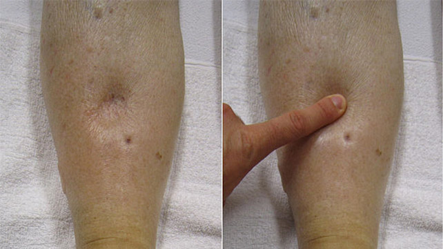 Pitting Edema: Causes, Scale, Treatment, and More