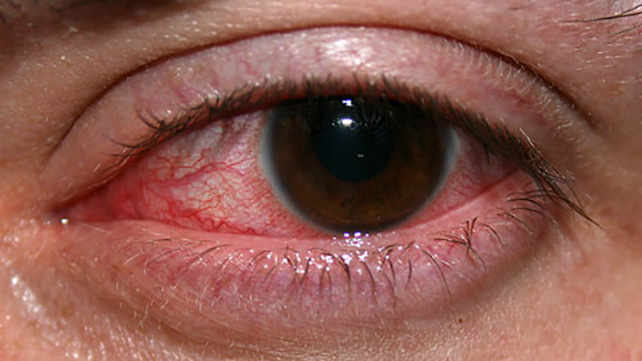 Virus herpes simple ocular