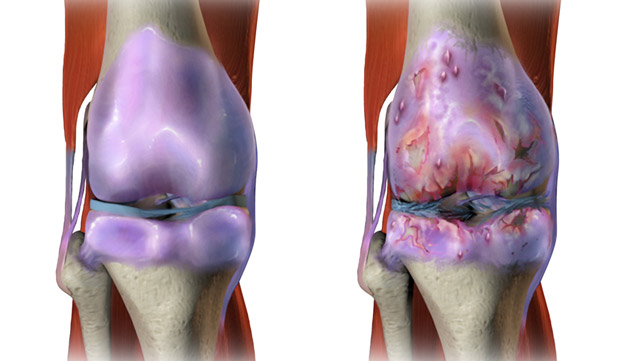 Osteoarthritis Pictures: How OA Affects Your Joints