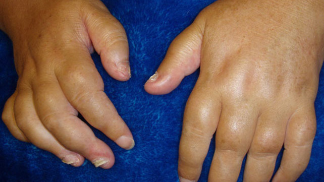 causes of sausage fingers