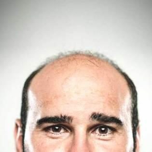 perda de cabelo padrão masculino