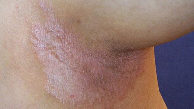 Psoriasis spot single How Biologics