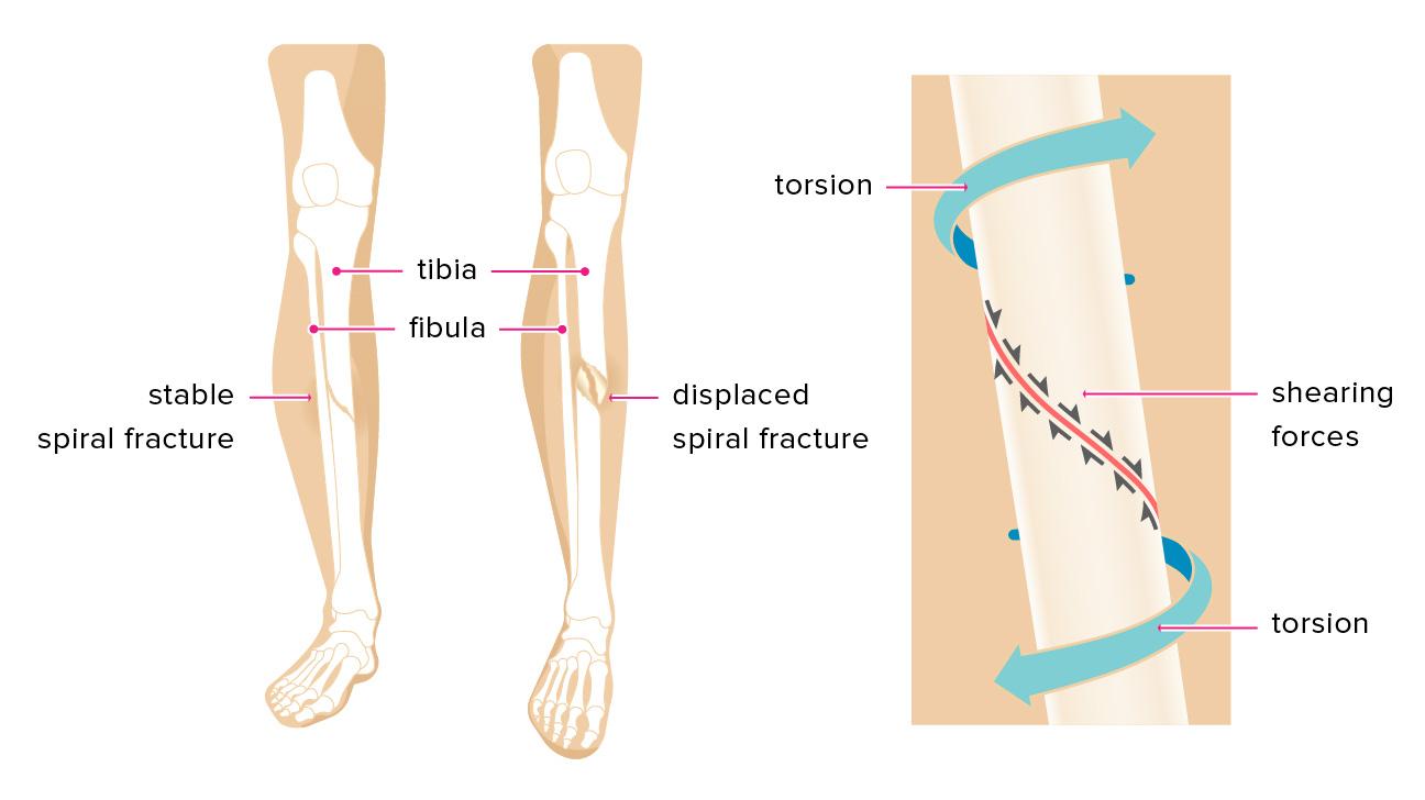 Tibia Bone Fracture