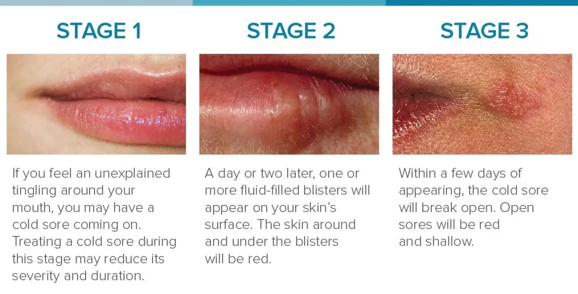 cold sore stages 1-3