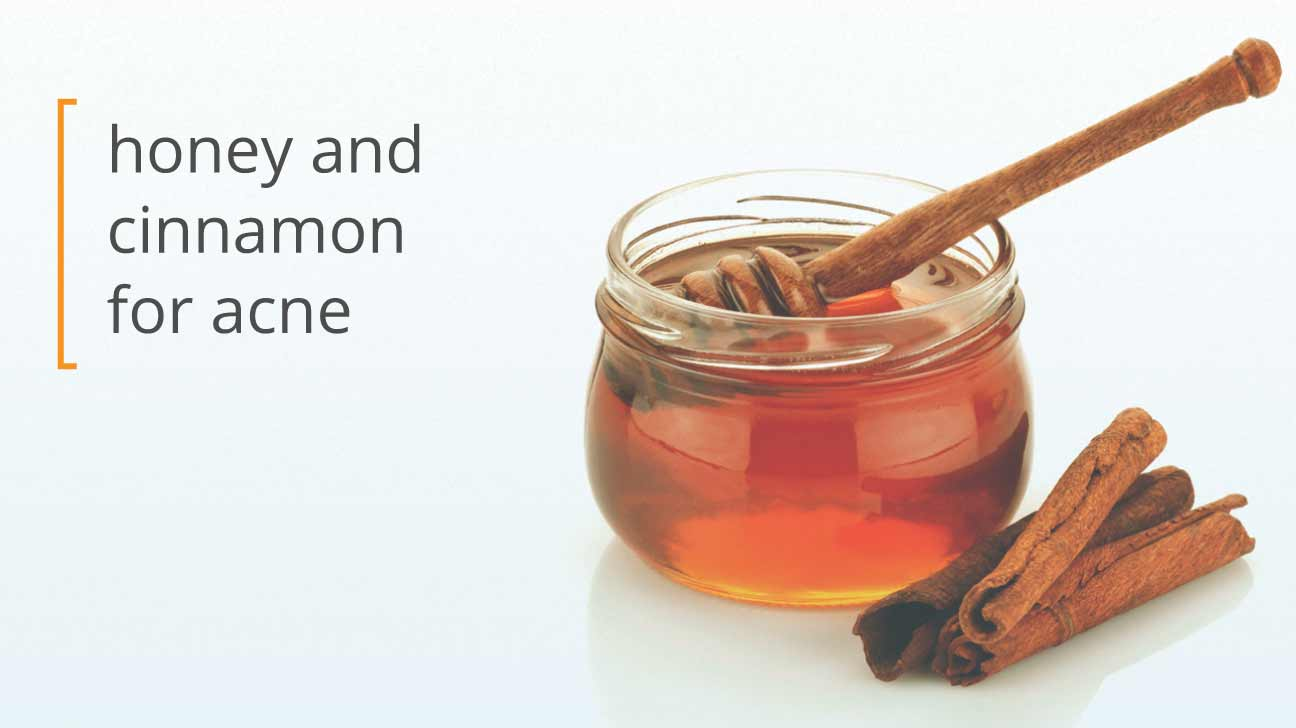 using honey and cinnamon for acnehoney, cinnamon, and your skin