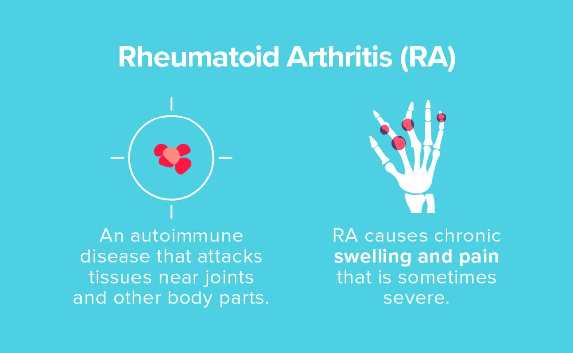 a jobb csípőízület rheumatoid arthritis)