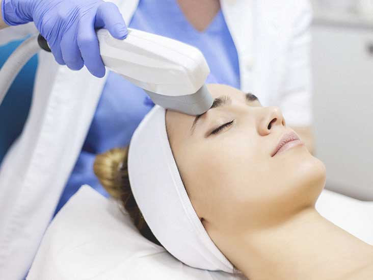 Microneedling Cost by Type and Body Part, Versus Laser, and More
