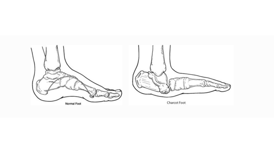 charcot foot treatment