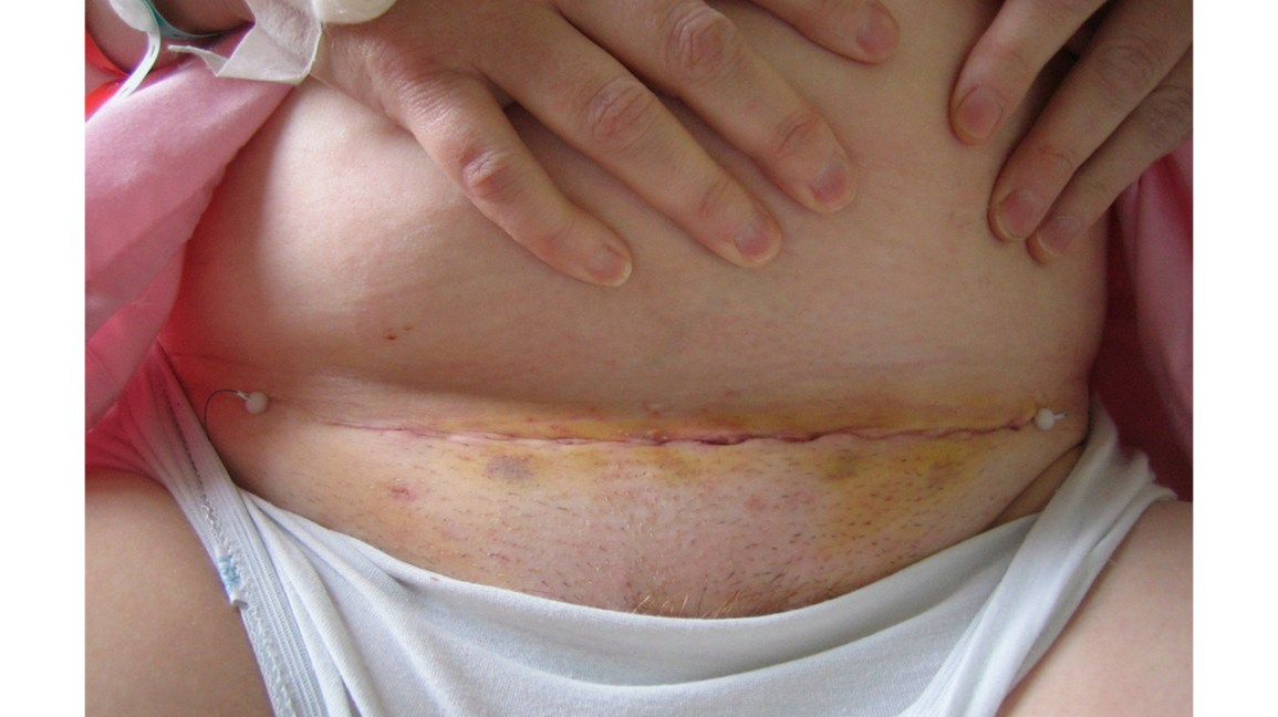 Miraculous Hysterectomy Scar Pictures And What To Expect After A Machost Co Dining Chair Design Ideas Machostcouk