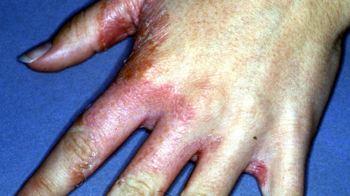 Tinea Manuum: Causes, Symptoms, and More