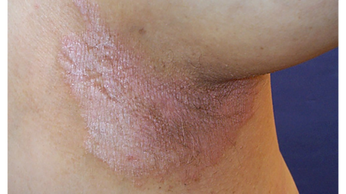 does psoriasis go away on its own