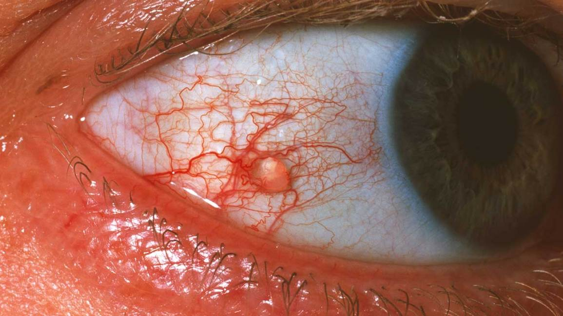 Conjunctival Cyst: Symptoms, Causes, Diagnosis, and Treatment