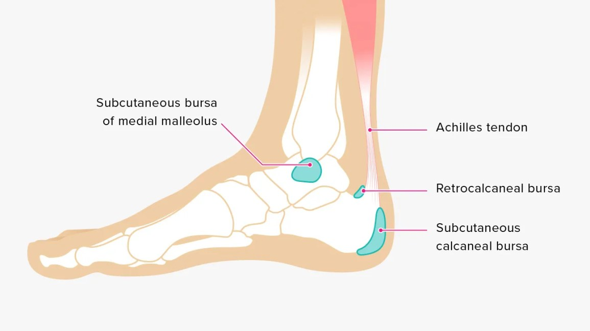 causes of bursitis in the ankle