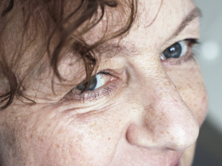 Uneven Eyelids: Causes and Treatment