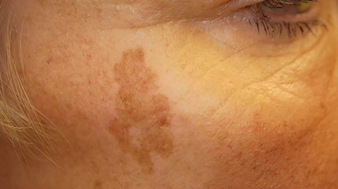 Sunspots on Skin: Causes and Treatment