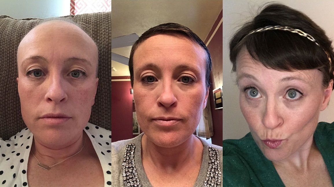 My Chemotherapy Diary 52 Photos Of Hair Loss And Recovery