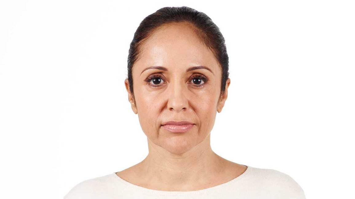Pictures of Juvederm vs. Restylane