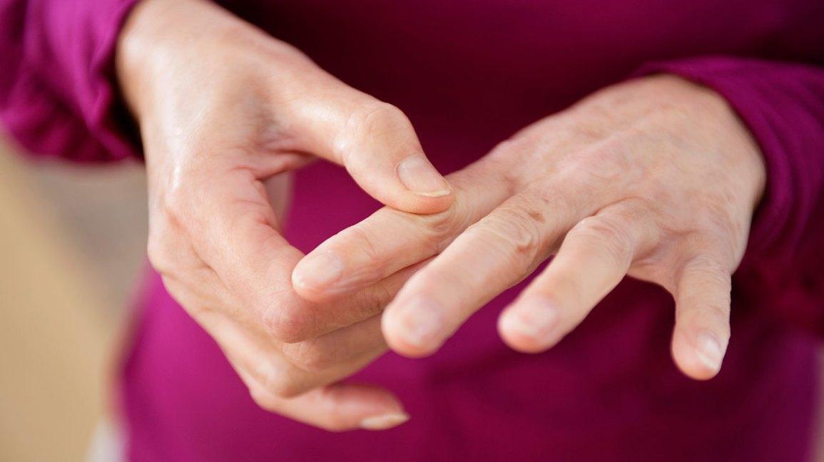 Vitamin D Levels and Rheumatoid Arthritis