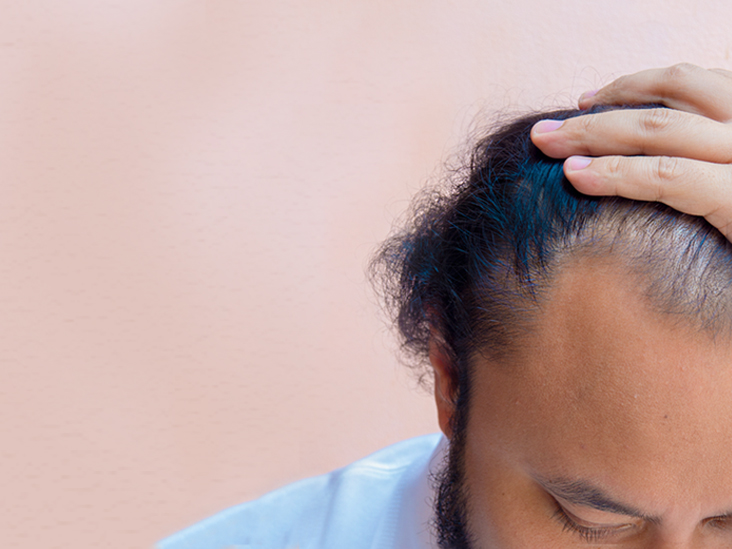 Uneven Hairline: Causes and Treatment