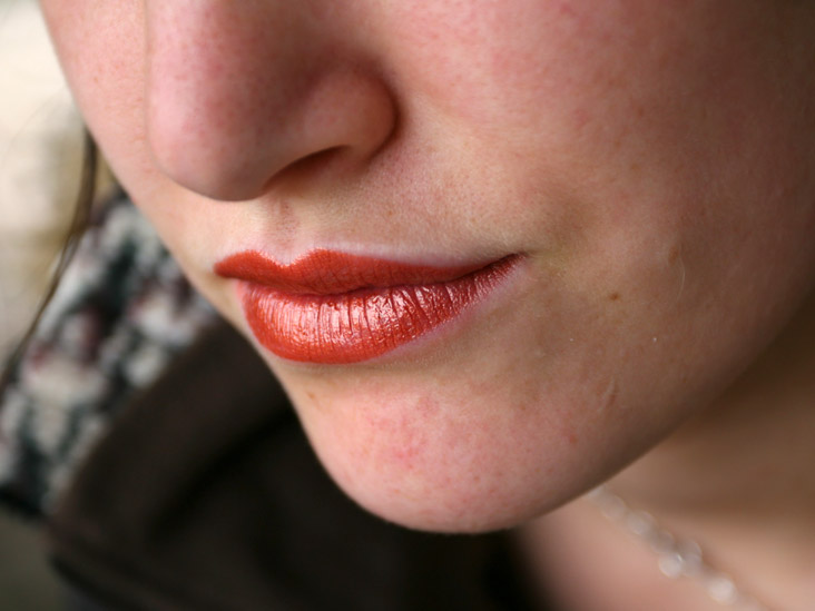 cracked corners of lips during pregnancy