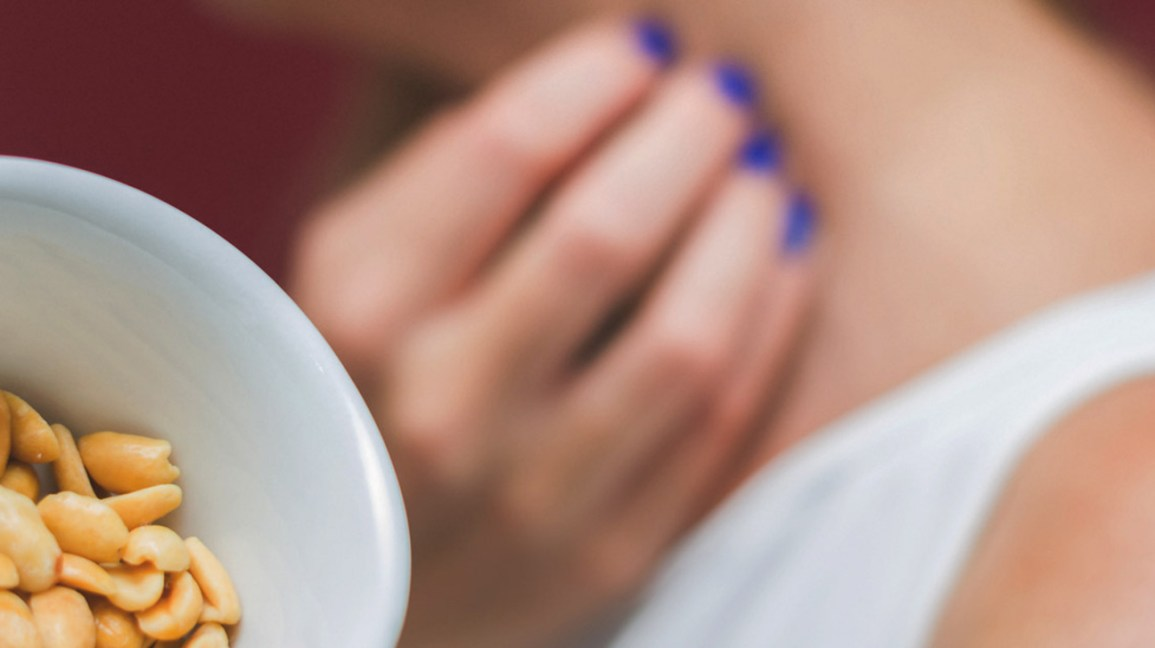 Food Allergy Rash: Other Symptoms, Management, and Treatments
