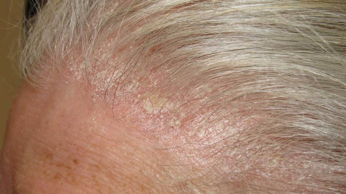 is scalp psoriasis contagious)