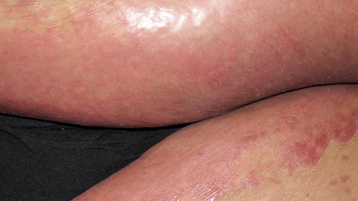 Genital herpes mild How to