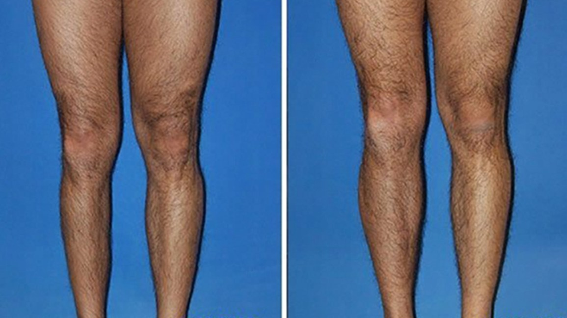 Calf Implants: Procedure, Costs, and More