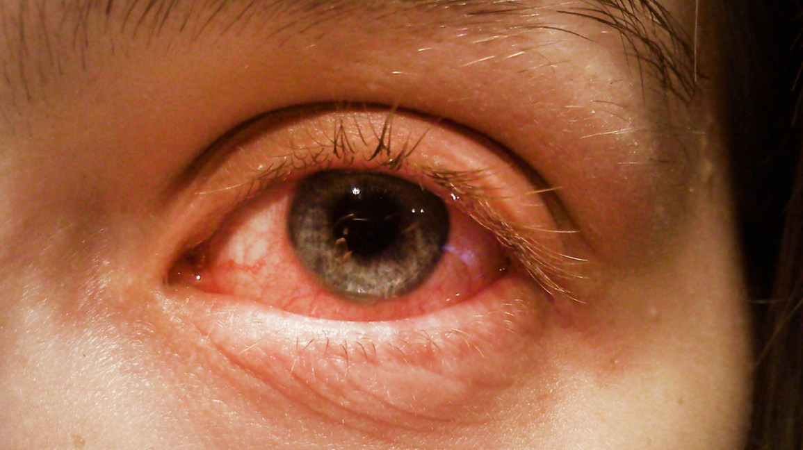 Conjunctivitis Pink Eye Overview Causes And Symptoms
