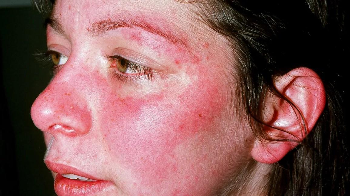 Nedves psoriasis a fejen