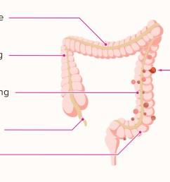 diagram of diverticulum [ 2592 x 1456 Pixel ]