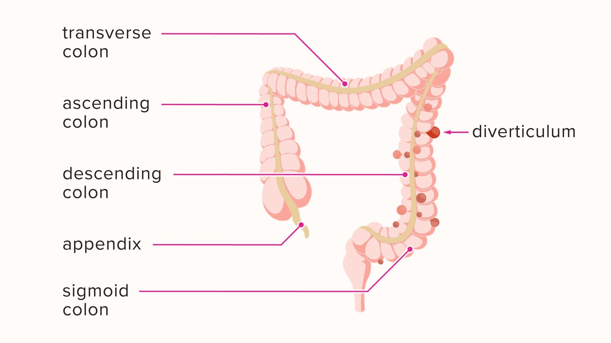 hight resolution of diagram of diverticulum
