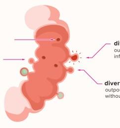 diagram of diverticulum [ 2593 x 1456 Pixel ]