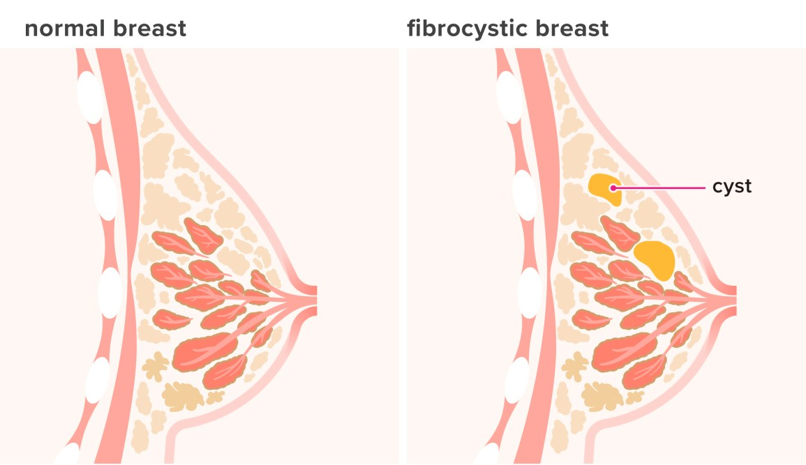 Fibrocystic Breast Disease Causes Symptoms And Diagnosis