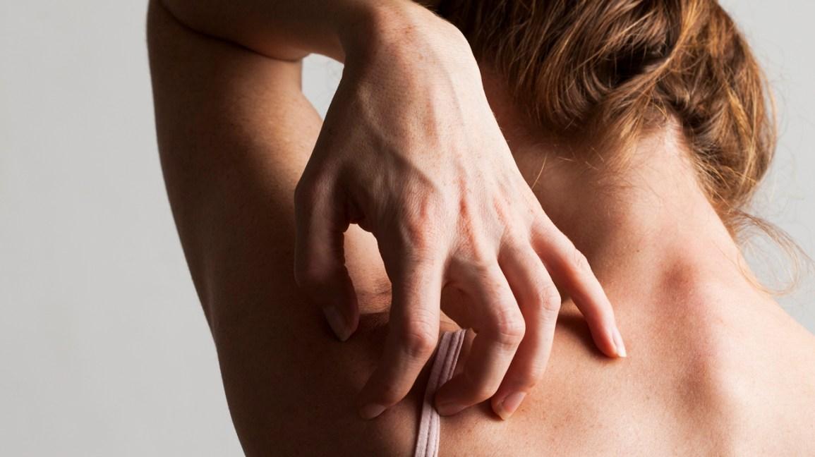 Scabies: Symptoms, Pictures, Treatment & More
