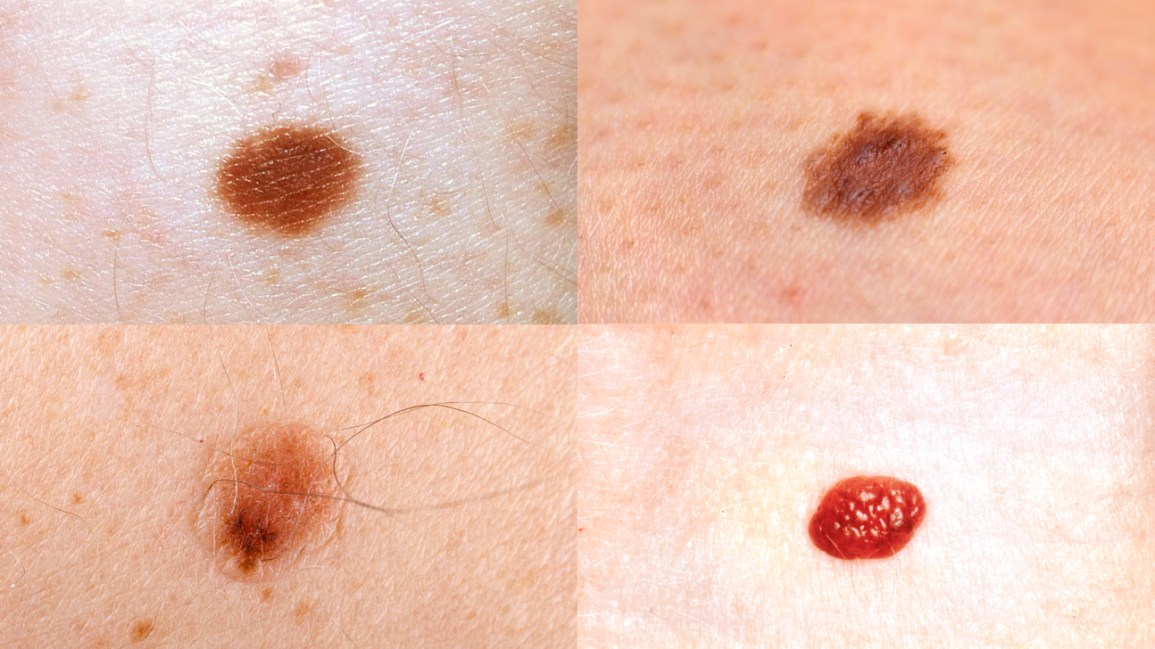 Skin Moles Types Causes And Skin Care