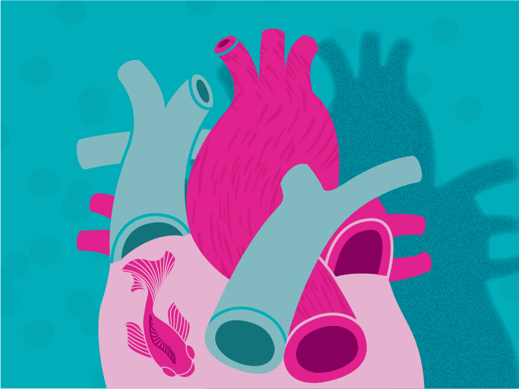 Atrial Fibrillation: How the Maze Procedure Works