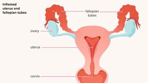 small resolution of uteru diagram iud