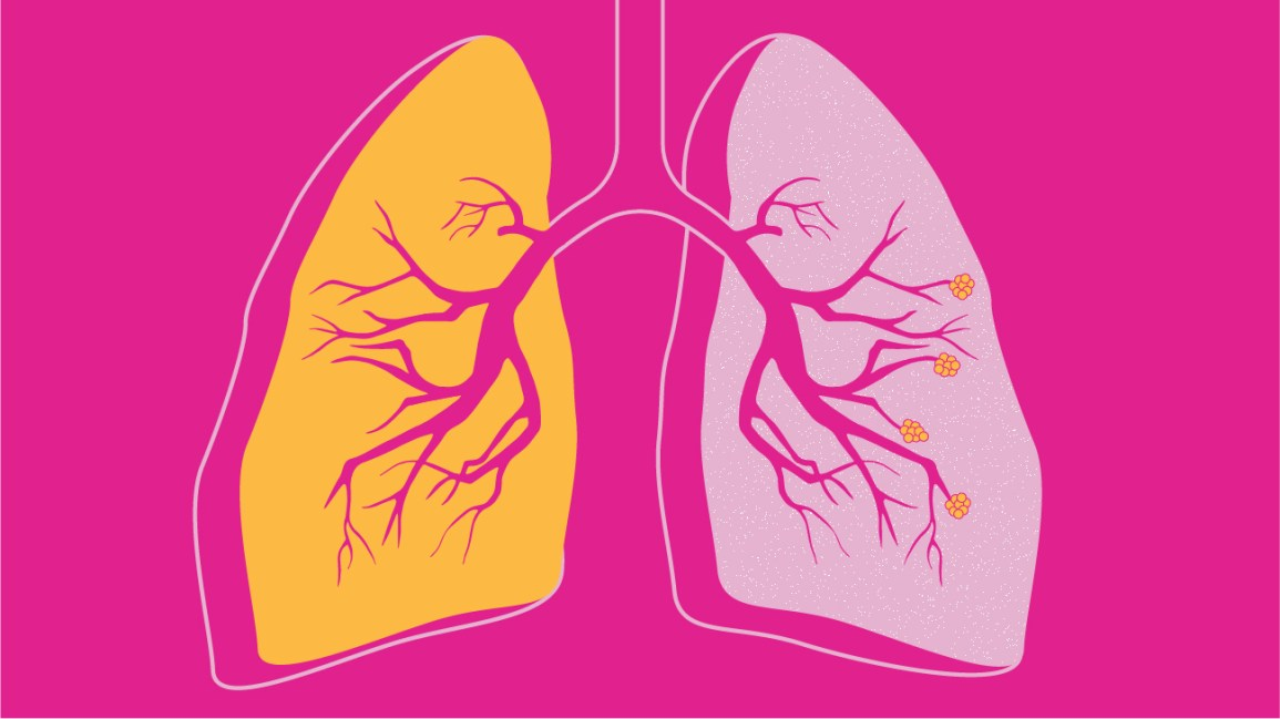 can you die from copd weight loss