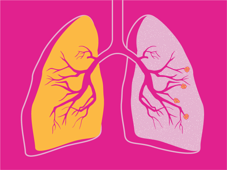 Emphysema vs  Chronic Bronchitis: What's the Difference?