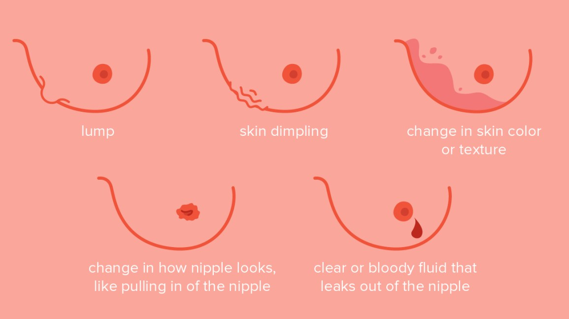 Breast Cancer Dimpling: Tips for Identification