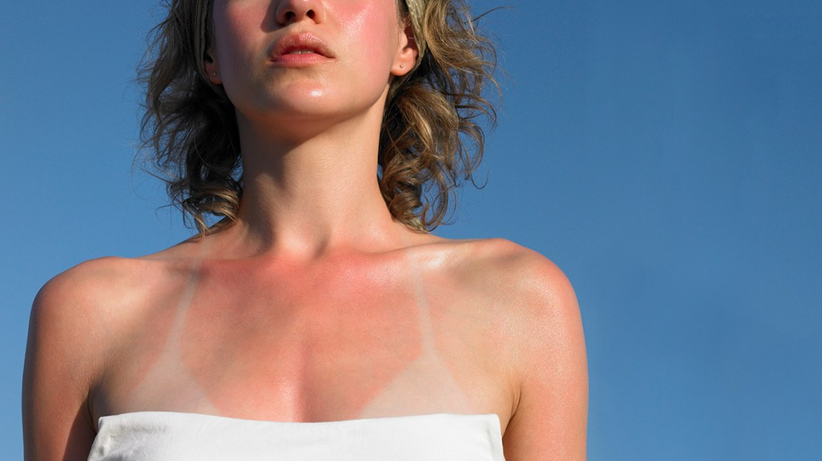7 Body Parts People Always Miss with Sunscreen