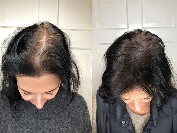 Hair Loss on Accutane and How to Prevent It