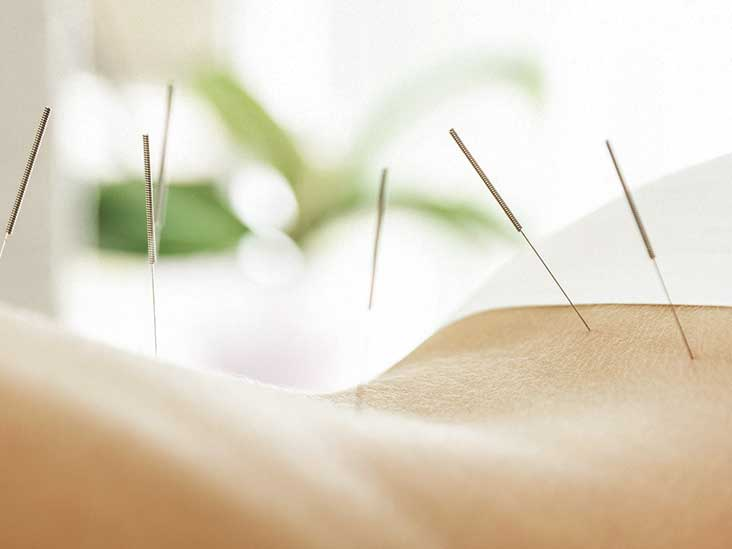 Laser Back Surgery: Benefits, Drawbacks, Efficacy, and More