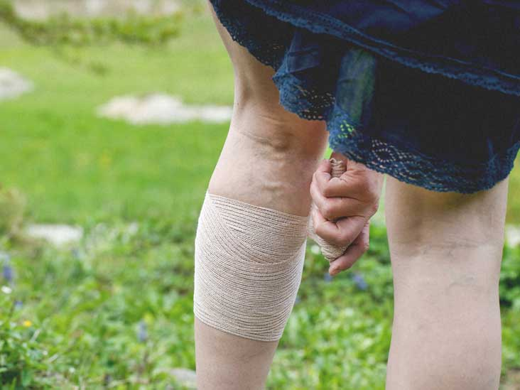 Tired Legs: Causes, Treatment, Prevention, and More