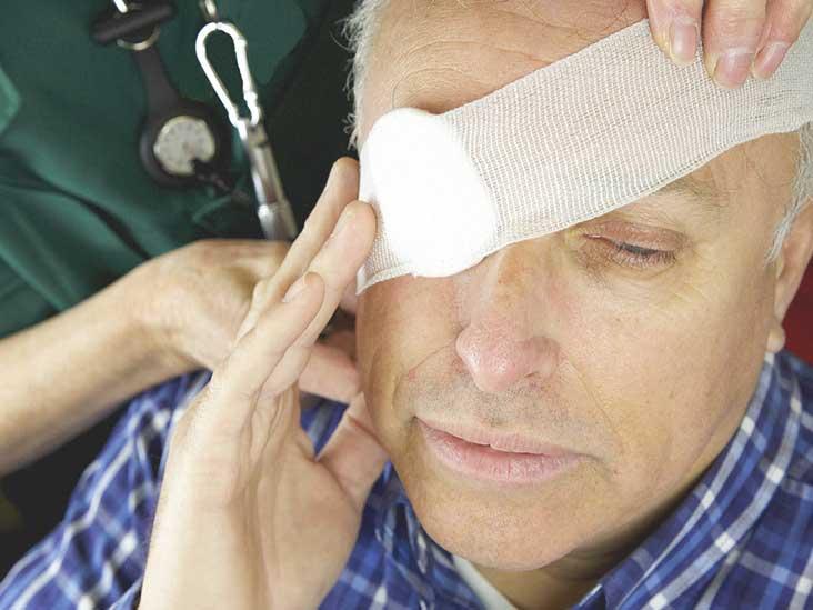 broken eye socket