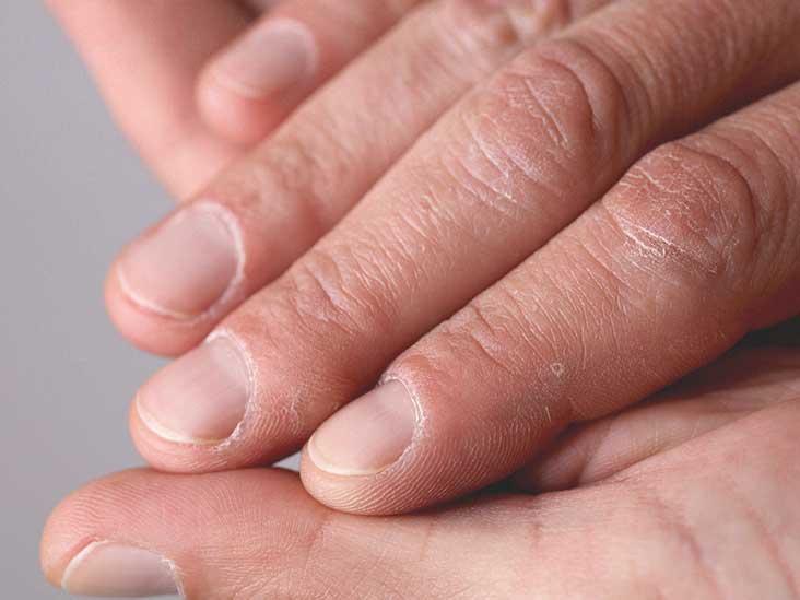 alergiska síntomas de diabetes
